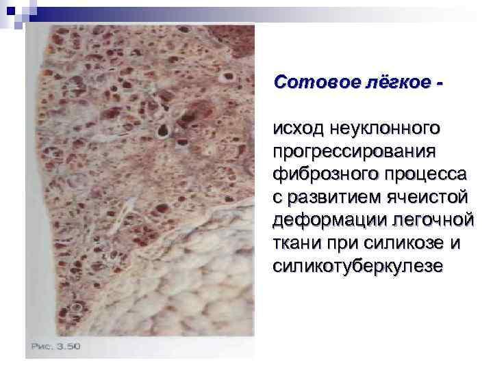 Сотовое лёгкое исход неуклонного прогрессирования фиброзного процесса с развитием ячеистой деформации легочной ткани при