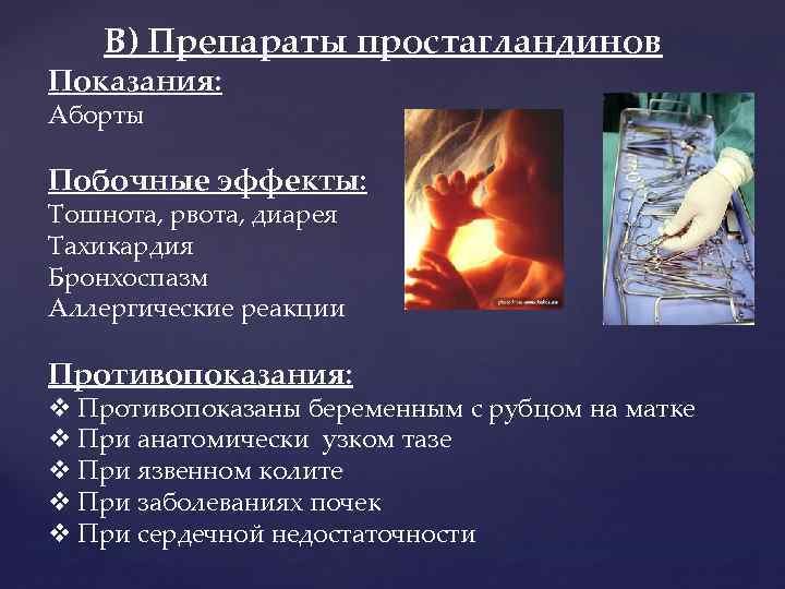В) Препараты простагландинов Показания: Аборты Побочные эффекты: Тошнота, рвота, диарея Тахикардия Бронхоспазм Аллергические реакции