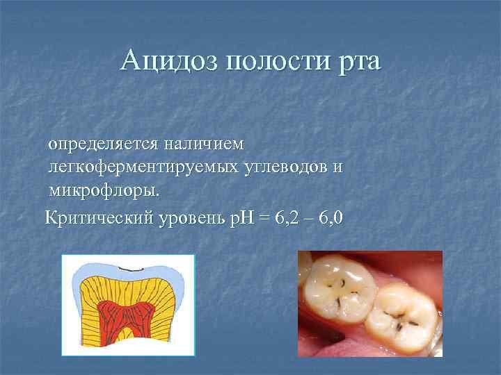Ацидоз полости рта определяется наличием легкоферментируемых углеводов и микрофлоры. Критический уровень р. Н =