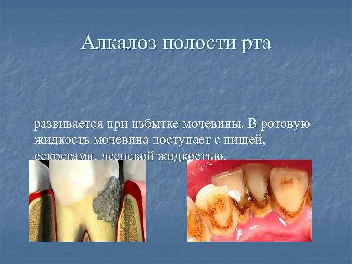 Алкалоз полости рта развивается при избытке мочевины. В ротовую жидкость мочевина поступает с пищей,