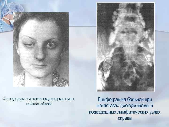 Фото девочки с метастазом дисгерминомы в глазном яблоке Лимфограмма больной при метастазах дисгерминомы в