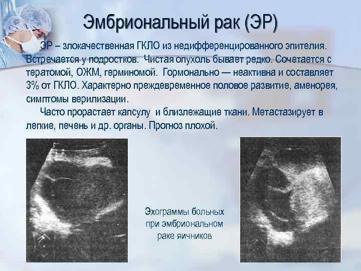 Эмбриональный рак (ЭР) ЭР – злокачественная ГКЛО из недифференцированного эпителия. Встречается у подростков. Чистая