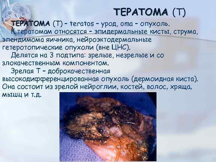 ТЕРАТОМА (Т) – teratos – урод, oma – опухоль. К тератомам относятся – эпидермальные