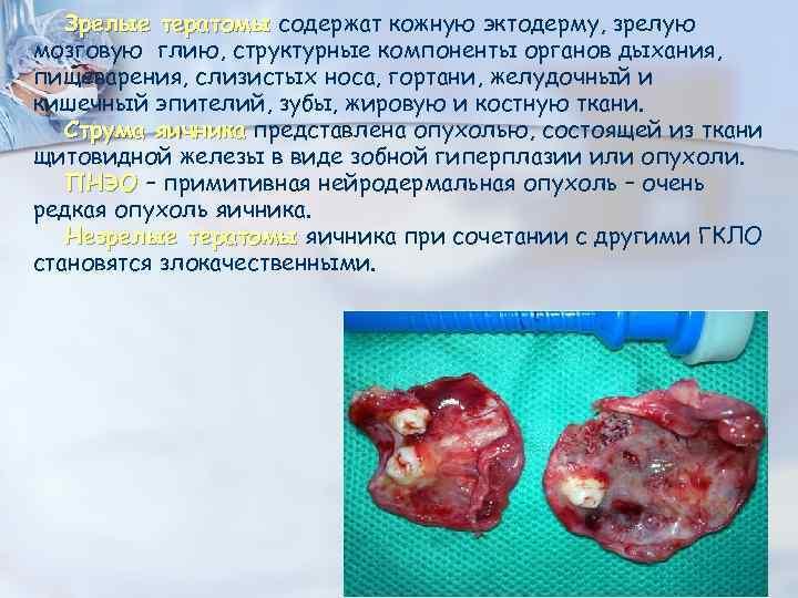 Зрелые тератомы содержат кожную эктодерму, зрелую мозговую глию, структурные компоненты органов дыхания, пищеварения, слизистых