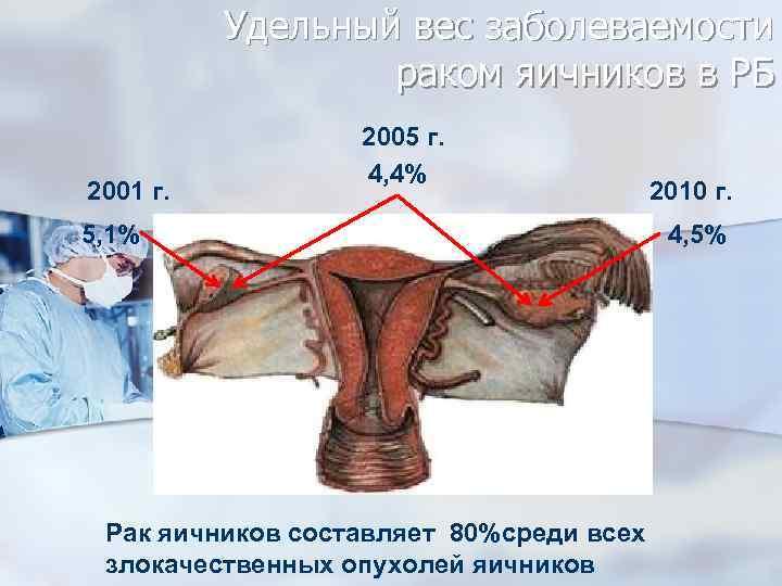 Удельный вес заболеваемости раком яичников в РБ 2001 г. 2005 г. 4, 4% 5,