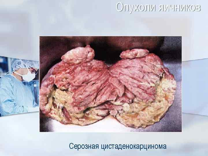 Опухоли яичников Серозная цистаденокарцинома