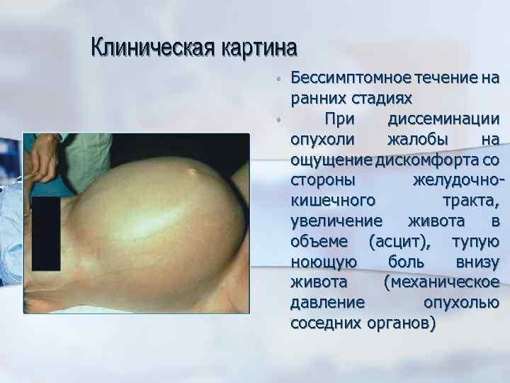 Клиническая картина • • Бессимптомное течение на ранних стадиях При диссеминации опухоли жалобы на