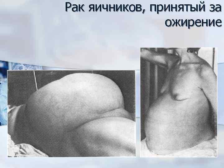 Рак яичников, принятый за ожирение