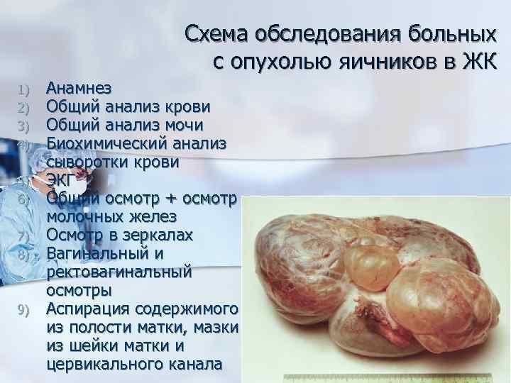 Схема обследования больных с опухолью яичников в ЖК 1) 2) 3) 4) 5) 6)