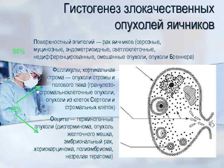 Гистогенез злокачественных опухолей яичников 90% 10% Поверхностный эпителий — рак яичников (серозные, муцинозные, эндометриоидные,