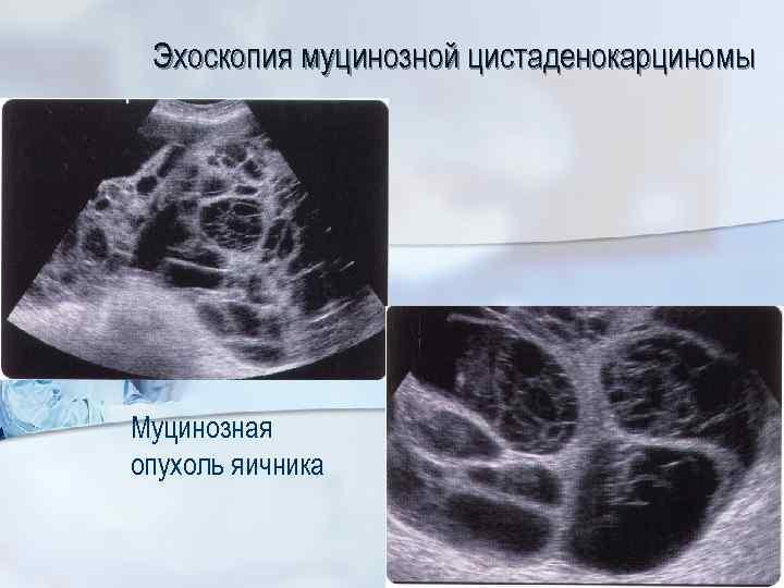 Эхоскопия муцинозной цистаденокарциномы Муцинозная опухоль яичника