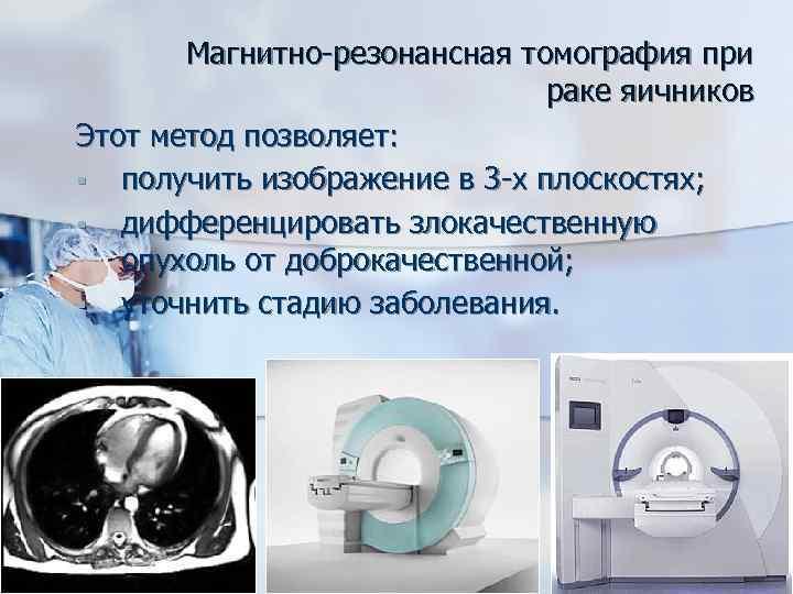 Магнитно-резонансная томография при раке яичников Этот метод позволяет: § получить изображение в 3 -х