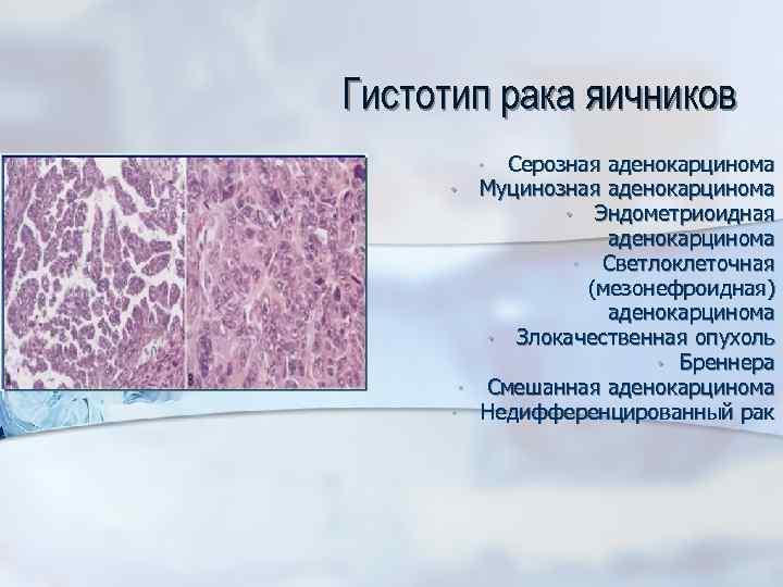 Гистотип рака яичников Серозная аденокарцинома Муцинозная аденокарцинома • Эндометриоидная аденокарцинома • Светлоклеточная (мезонефроидная) аденокарцинома