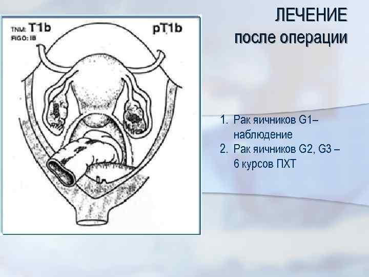 ЛЕЧЕНИЕ после операции 1. Рак яичников G 1– наблюдение 2. Рак яичников G 2,