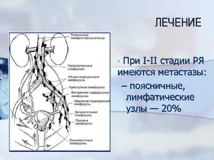 ЛЕЧЕНИЕ • При I-II стадии РЯ имеются метастазы: – поясничные, лимфатические узлы — 20%
