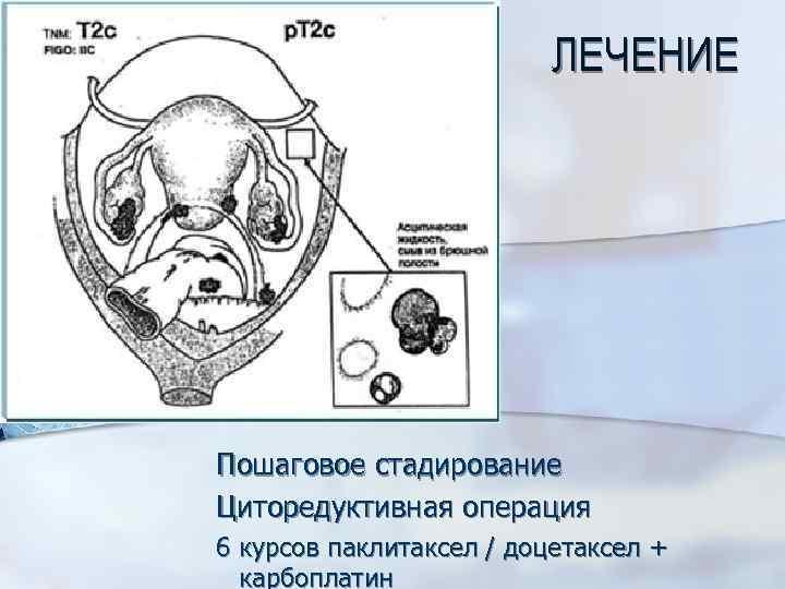 ЛЕЧЕНИЕ Пошаговое стадирование Циторедуктивная операция 6 курсов паклитаксел / доцетаксел + карбоплатин