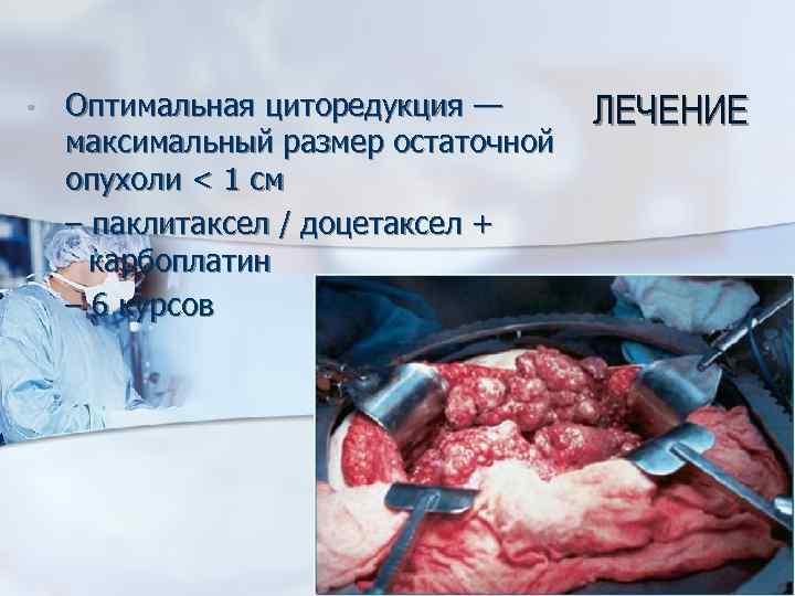 • Оптимальная циторедукция — максимальный размер остаточной опухоли < 1 см – паклитаксел