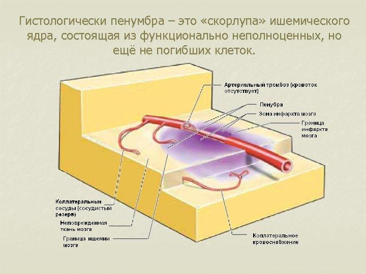 Гистологически пенумбра – это «скорлупа» ишемического ядра, состоящая из функционально неполноценных, но ещё не