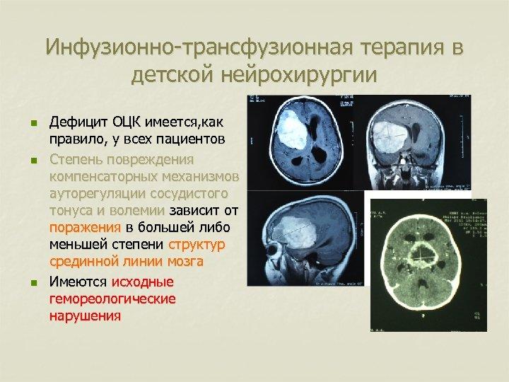 Инфузионно-трансфузионная терапия в детской нейрохирургии n n n Дефицит ОЦК имеется, как правило, у