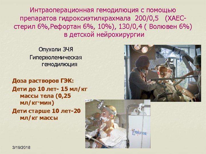 Интраоперационная гемодилюция с помощью препаратов гидроксиэтилкрахмала 200/0, 5 (ХАЕСстерил 6%, Рефортан 6%, 10%), 130/0,