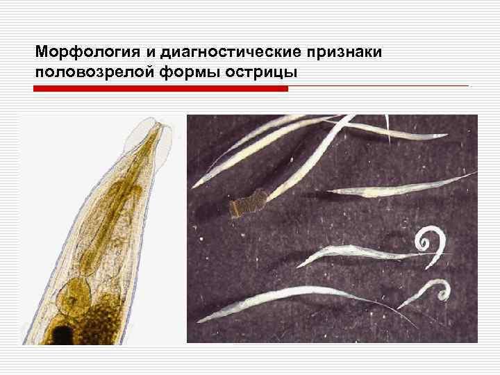 Морфология и диагностические признаки половозрелой формы острицы