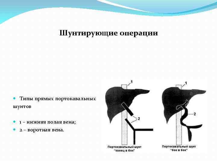 Шунтирующие операции Типы прямых портокавальных шунтов 1 – нижняя полая вена; 2 – воротная