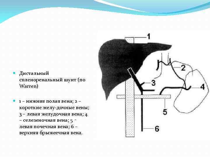 Дистальный спленоренальный шунт (по Warren) 1 – нижняя полая вена; 2 – короткие