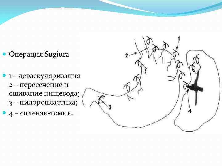 Операция Sugiura 1 – деваскуляризация; 2 – пересечение и сшивание пищевода; 3 –