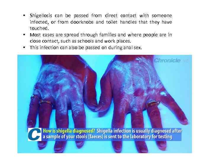 • Shigellosis can be passed from direct contact with someone infected, or from