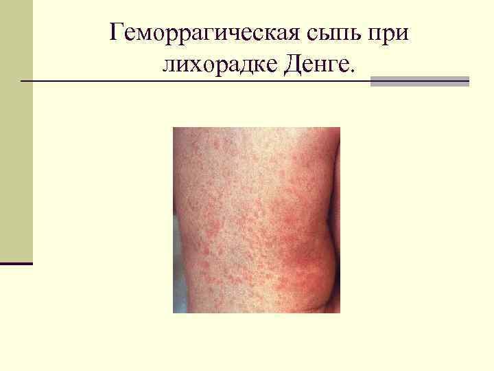 Геморрагическая сыпь при лихорадке Денге.