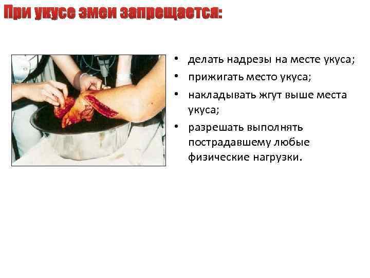 При укусе змеи запрещается: • делать надрезы на месте укуса; • прижигать место укуса;