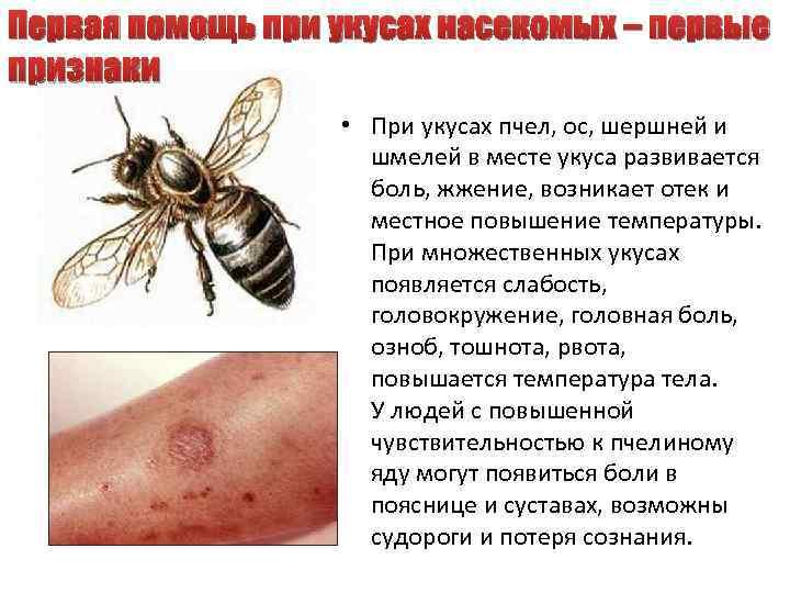 Первая помощь при укусах насекомых – первые признаки • При укусах пчел, ос, шершней