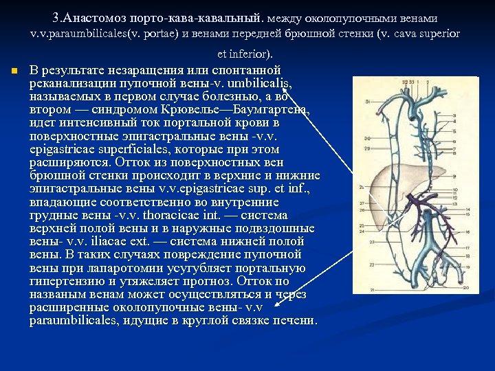 3. Анастомоз порто-кавальный. между околопупочными венами v. v. paraumbilicales(v. portae) и венами передней брюшной