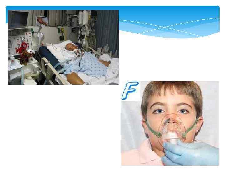 Анафилактический шок > Клинические протоколы МЗ РК - 2014 ...