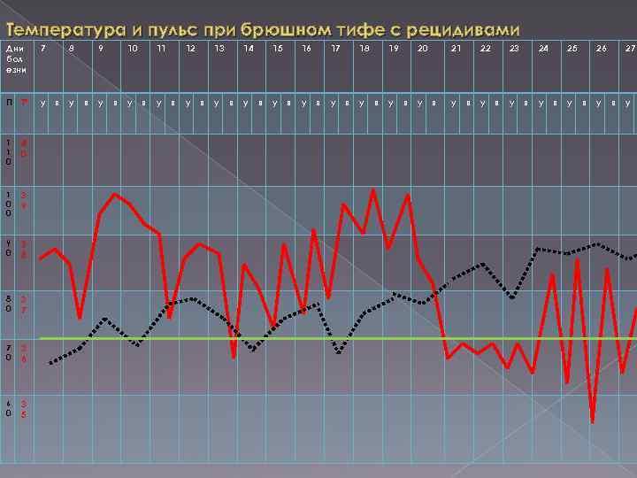 Температура и пульс при брюшном тифе с рецидивами Дни бол езни 7 П Тº