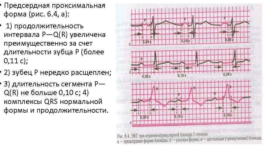 • Предсердная проксимальная форма (рис. 6. 4, а): • 1) продолжительность интервала P—Q(R)