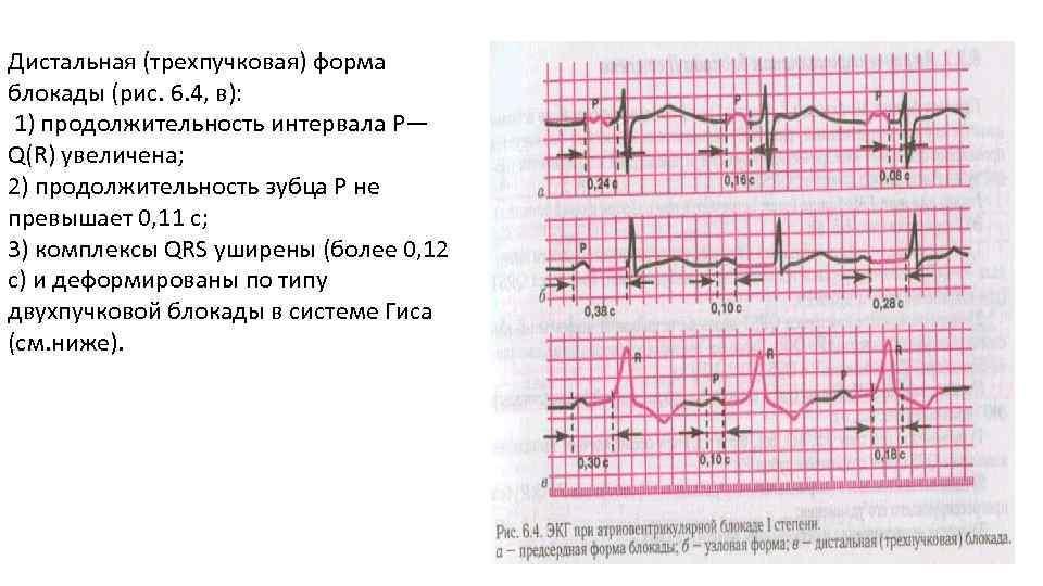 Дистальная (трехпучковая) форма блокады (рис. 6. 4, в): 1) продолжительность интервала P— Q(R) увеличена;