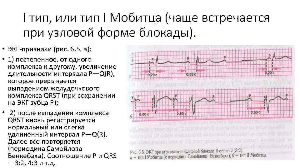 I тип, или тип I Мобитца (чаще встречается при узловой форме блокады). • ЭКГ-признаки