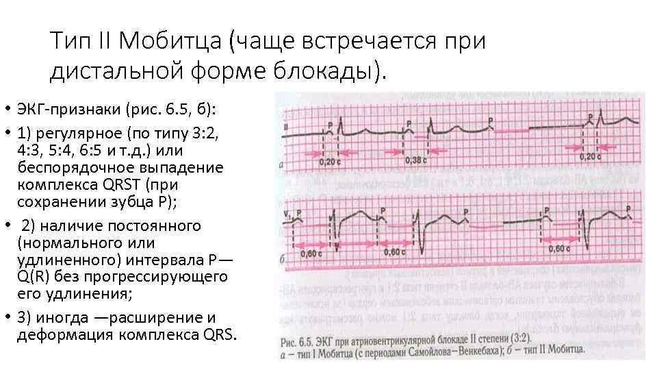 Тип II Мобитца (чаще встречается при дистальной форме блокады). • ЭКГ-признаки (рис. 6. 5,