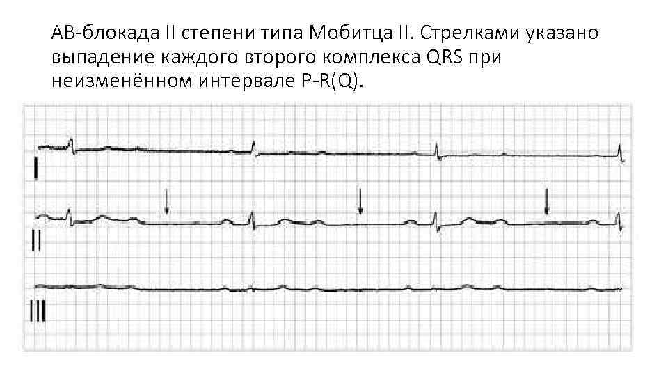 АВ-блокада II степени типа Мобитца II. Стрелками указано выпадение каждого второго комплекса QRS при