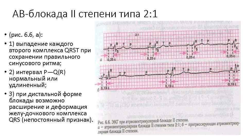 АВ-блокада II степени типа 2: 1 • (рис. 6. 6, а): • 1) выпадение