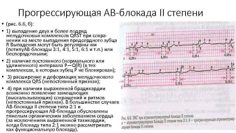 Прогрессирующая АВ-блокада II степени • (рис. 6. 6, б): • 1) выпадение двух и