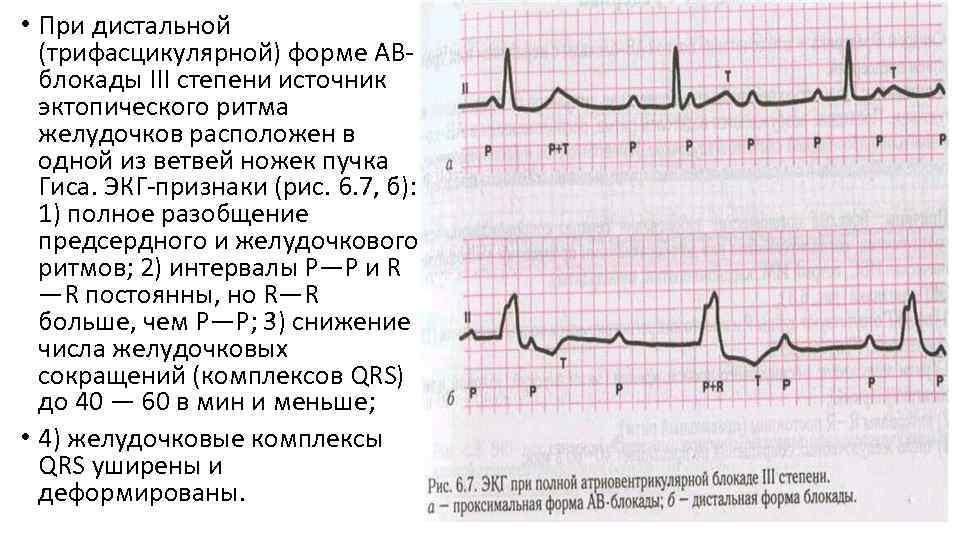 • При дистальной (трифасцикулярной) форме АВблокады III степени источник эктопического ритма желудочков расположен