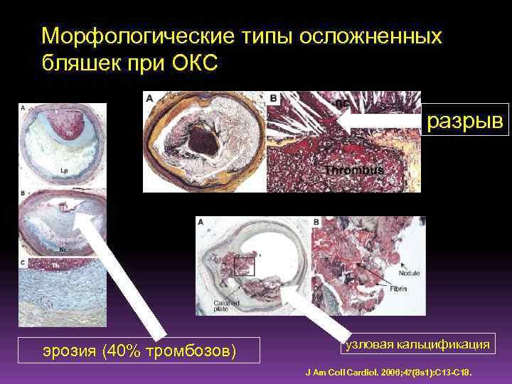 Морфологические типы осложненных бляшек при ОКС разрыв эрозия (40% тромбозов) узловая кальцификация J Am