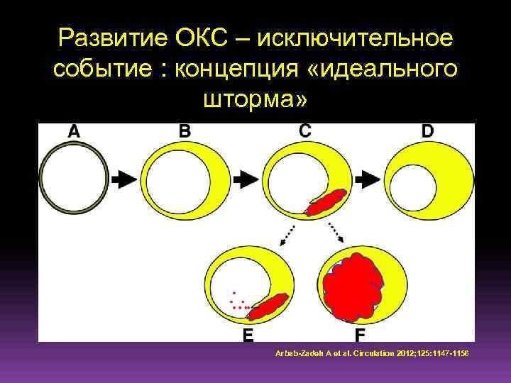 Развитие ОКС – исключительное событие : концепция «идеального шторма» Arbab-Zadeh A et al. Circulation