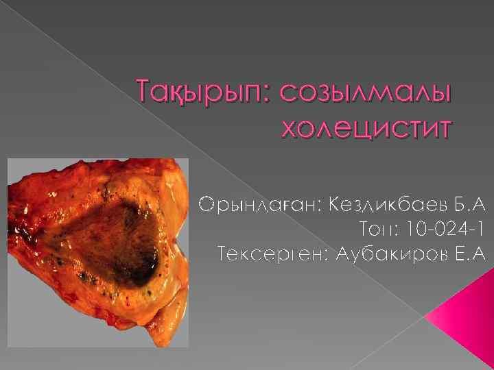 Тақырып: созылмалы холецистит Орындаған: Кездикбаев Б. А Топ: 10 -024 -1 Тексерген: Аубакиров Е.