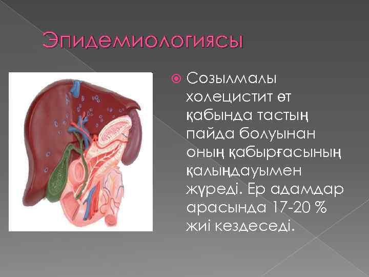 Эпидемиологиясы Созылмалы холецистит өт қабында тастың пайда болуынан оның қабырғасының қалыңдауымен жүреді. Ер адамдар
