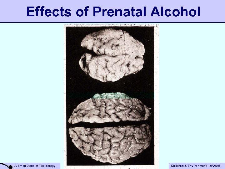 Effects of Prenatal Alcohol A Small Dose of Toxicology Children & Environment – 6/25/05
