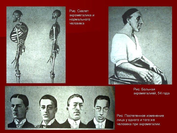 Рис. Скелет акромегалика и нормального человека Рис. Больная акромегалией, 54 года Рис. Постепенное изменение