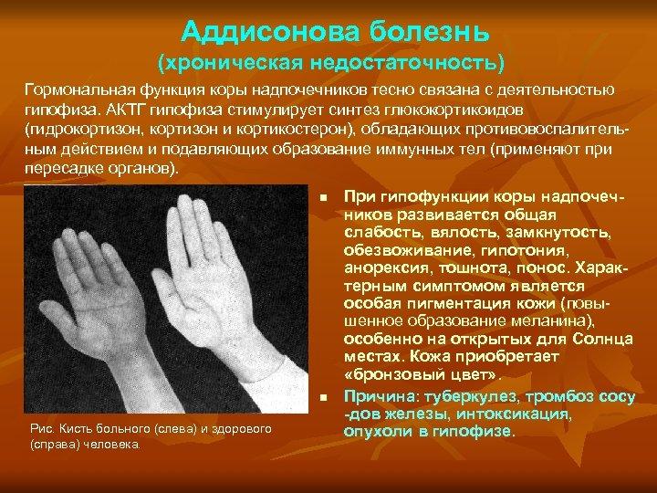 Аддисонова болезнь (хроническая недостаточность) Гормональная функция коры надпочечников тесно связана с деятельностью гипофиза. АКТГ